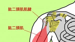肱二頭肌肌腱炎造成肩膀痛-運動傷害